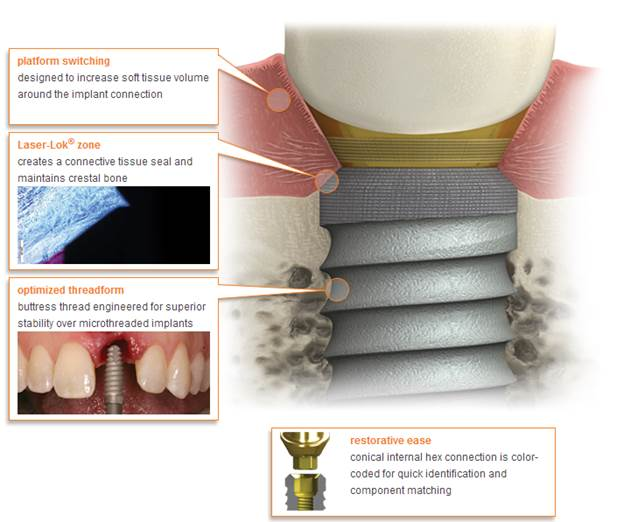 dental implants - how they work